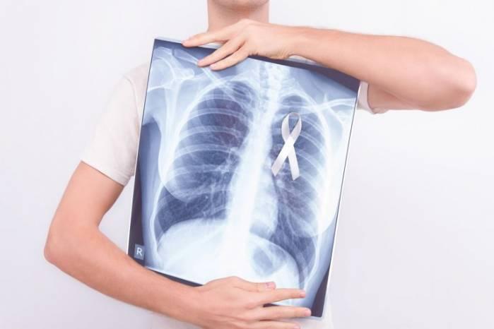 Agosto Branco: como a medicina mudou a perspectiva do câncer de pulmão