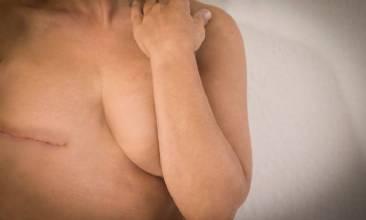Pacientes recebem procedimentos de reconstrução mamária gratuitos em Brasília