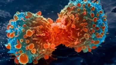 Oncologista  alerta para prevenção no Dia Mundial de Combate ao Câncer