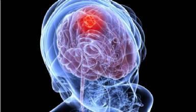 Tumores de cabeça e pescoço atingem 41 mil brasileiros anualmente